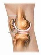 femoro-rotulea